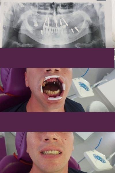 Smile Plus Implants 3