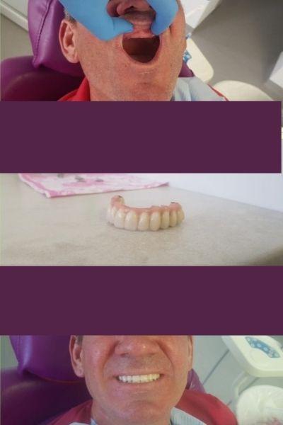 Smile Plus Implants 2